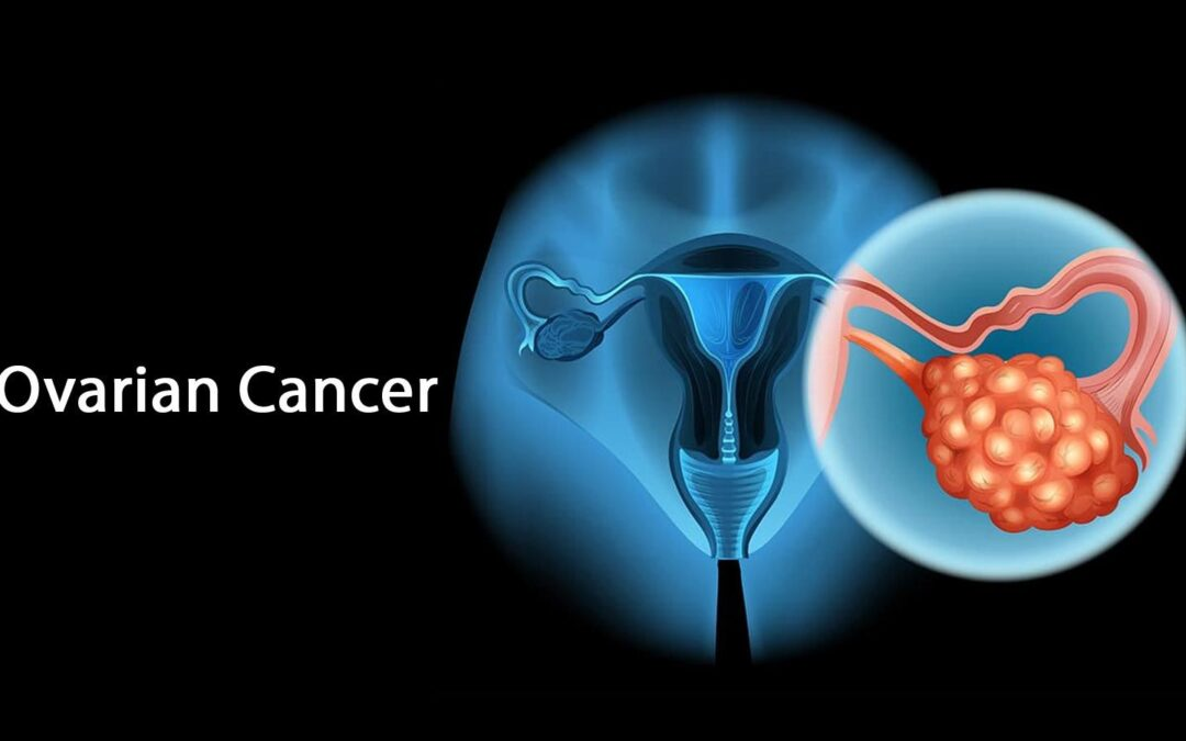 Ovarian cancer – Symptoms, Causes & Prevention