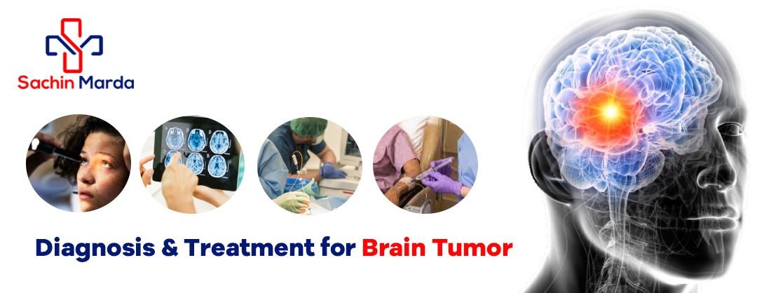 Diagnosis & Treatment for Brain Tumor